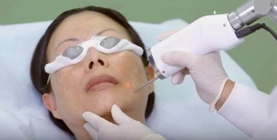laser age spot removal
