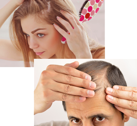 laser hair loss treatment englewood, NJ