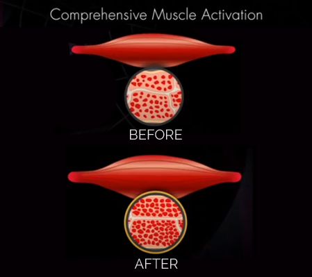 Muscle Building Treatment Englewood