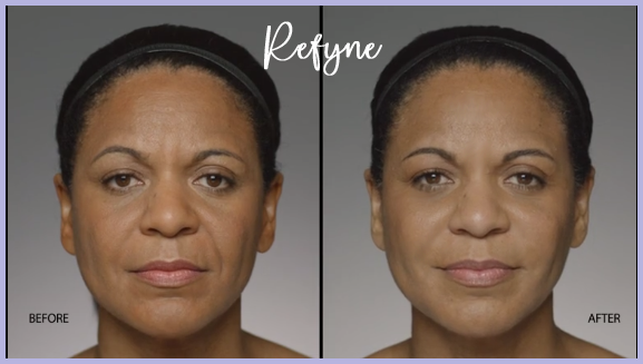 Restylane Before & After