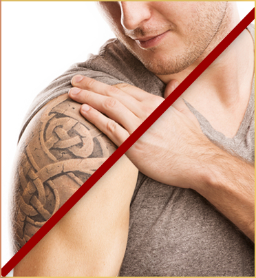 tattoo removal englewood nj